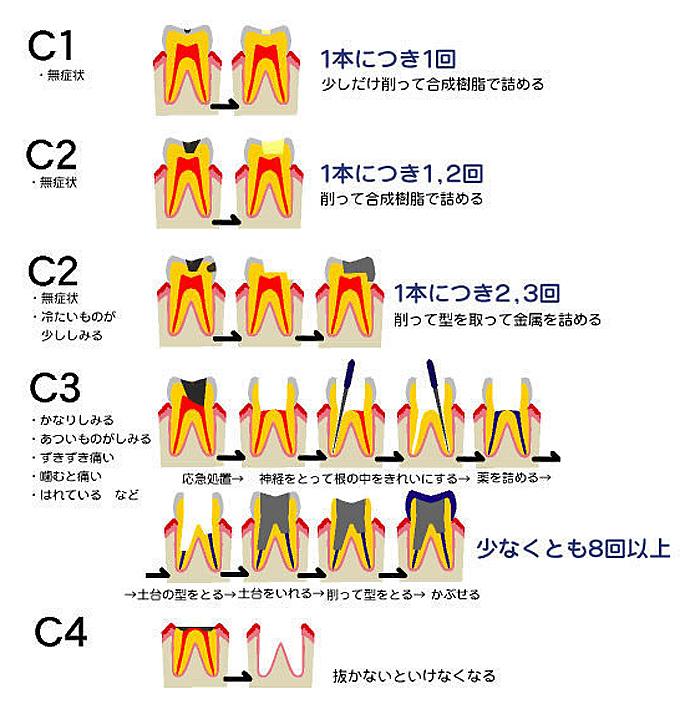 虫歯治療の流れ